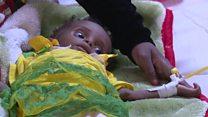 خطر همهگیری وبا در سایه جنگ در یمن