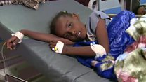 اليمن: مخاوف من انتشار وباء الكوليرا