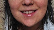 Huddersfield teeth