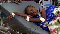 วิกฤติอหิวาตกโรคในเยเมน