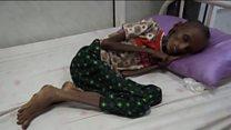 ယီမင်နိုင်ငံမှာဝမ်းရောဂါ ကူးစက်မှုတွေဖြစ်ပွား