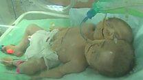 توأمتان بجسد واحد وقلبين في غزة