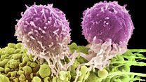 خلايا سرطان الرئتين تتجول بحرية في الجسم