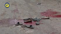 'அலெப்போ மிகப்பெரும் சவக்குழியாக மாறுகிறது'-ஐ நா கவலை