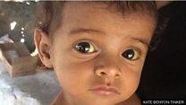 Banyak anak kelaparan akibat perang di Yaman