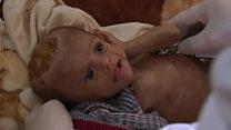 Children on the brink of famine in Yemen