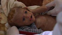 جحيم الأطفال في اليمن بسبب الجوع