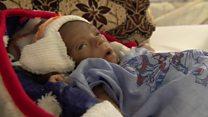 Yemen: la lucha de los bebés y niños por sobrevivir la guerra