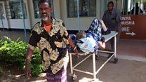 Mahangaiko ya wagonjwa Kenya kutokana na mgomo