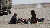 دوملیون کودک یمنی سوء تغذیه دارند