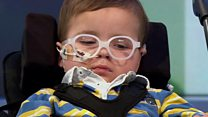 Boy saved by Christmas Day operation
