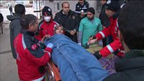 Aleppo wounded relive bombing ordeal