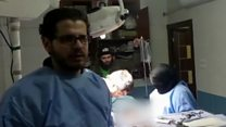 Caesarean performed by nurses in Aleppo