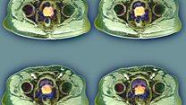 प्रॉस्टेट कैंसर की नई चिकित्सा