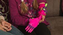 ساخت دست های مصنوعی ارزان قیمت با پرینتر سه بعدی