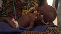 Nigeria's starving children