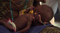 நைஜீரியாவில் ஒரு லட்சத்துக்கும் அதிகமானோர் பட்டினியின் பிடியில்