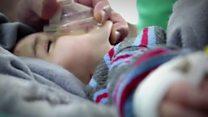 စစ်ဒဏ်ခံ ဆီးရီးယား ကလေးငယ်