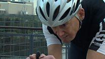 Трехмерный принтер помог велосипедисту, лишившемуся челюсти