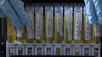 علماء يطورون اختبار بول يكشف صحة النظام الغذائى للشخص