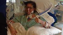 Woman survives 6 days with no lungs