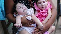 ဇီကာ ရောဂါ ကူးစက်ပြန့်ပွားမှုတွေ ကြောင့် ကမ္ဘာ့ကျန်းမာရေး ပြဿနာ အဖြစ် ကြေညာခဲ့ရတာ တနှစ် ပြည့်