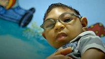 Los problemas de los bebés afectados por el zika en Brasil a un año de la emergencia global por el virus