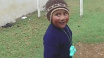Peru'da yetersiz beslenmeyle mücadele