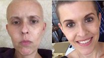 'Why I've raised £135,000 for my cancer treatment'