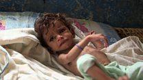 أطفال اليمن يعانون من سوء التغذية والمجاعة تهدد أغلب السكان