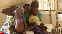 दक्षिण सुडान में अकाल