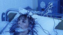 نتائج إيجابية لعلاج فقدان الشهية بالتحفيز العميق للمخ
