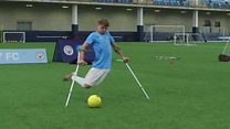 Man City's amputee football star