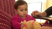 La bebé que sobrevivió a una bomba en Siria se reencuentra con el doctor que la salvó