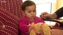 Bé mồ côi 5 tháng tuổi Syria gặp lại bác sĩ tình nguyện người Anh đã mổ cứu sống bé cách đây hai tháng
