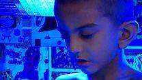 Boy, 4, living under UV lights