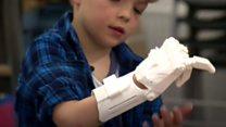 School makes boy, 6, a 3D Prosthetic hand