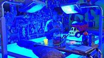 El niño que debe pasar 20 horas al día bajo una luz azul para mantenerse en vida