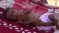 """اليمن يواجه """"أكبر مأساة إنسانية في العالم"""""""