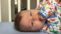 """نوم الأطفال الرضّع على ظهورهم """"يمنع خطر الموت"""""""