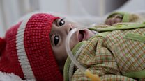 Yemen's children facing starvation
