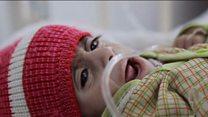 यमन में भुखमरी