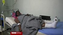 Daawo: Soomaalidii ku dhaawacantay weerarkii doonta Yemen oo hadlay