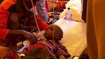 Os 15 minutos que salvaram menino em crise que afeta sobrevivência e futuro de uma geração