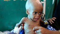 La agonía de los niños desnutridos que no tienen fuerza ni para llorar