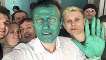 Облитий зеленкою Навальний: мене це не зупинить!