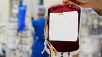 Ilmuwan Inggris kembangkan cara produksi sel darah merah di laboratorium