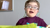 'Gap' in Down's Syndrome NHS provision