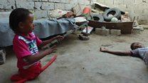 بي بي سي تلتقي  طفل يمني فقد ساقيه جراء الحرب