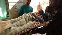 เด็กอิรักเป็นเหยื่อมือปืนซุ่มยิง